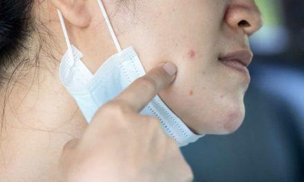 Maskne: tudo sobre a acne causada pelo uso de máscara e como evitar