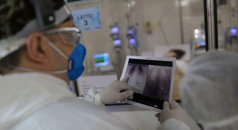 Casos de síndrome respiratória aguda grave caem