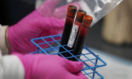 Novo estudo descarta elo entre tipo sanguíneo e a incidência de Covid