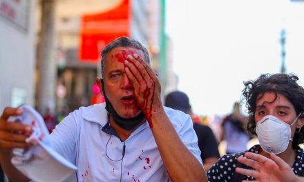 Homem que perdeu olho após ação da PM em protesto no Recife deixa hospital
